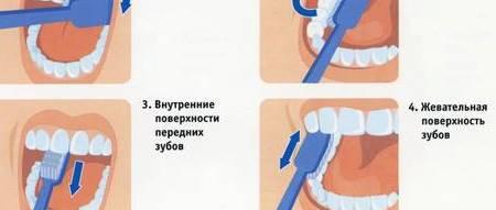 Борьба с микробами во рту